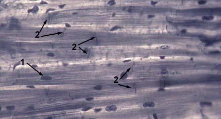 Мышечная клетка рисунок
