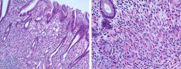 Как выглядит цитоплазма