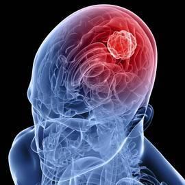 Опухолевые клетки