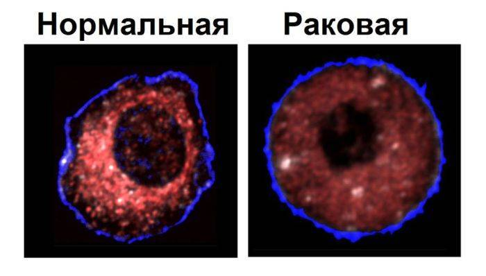 Как называются раковые клетки